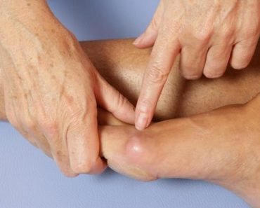 how to remove bunions