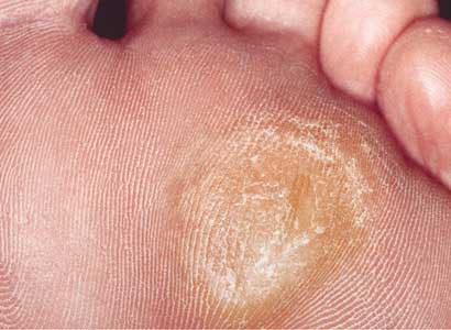 how to remove calluses from feet