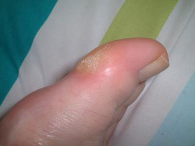 hard skin on big toe