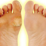 The Top 4 Home Remedies For Calluses