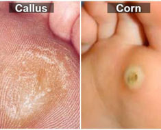 difference-between-corn-and-callus