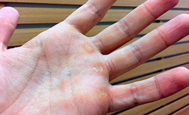 calluses-on-hands-from-lifting-weights