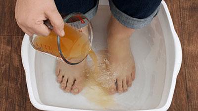 vinegar-foot-soak