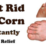 Best 3 Home Remedies For Corns
