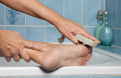 home-remedies-for-corns-pumice-stone