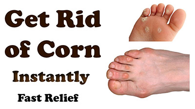 home-remedies-for-corns