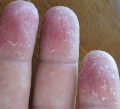 How To Remove Hard Skin