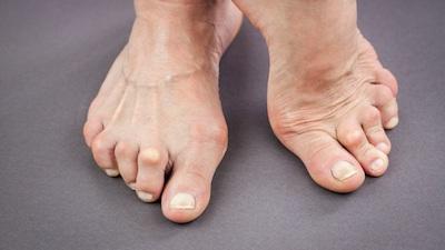 feet Arthritis