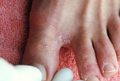 feet Skin Ailments